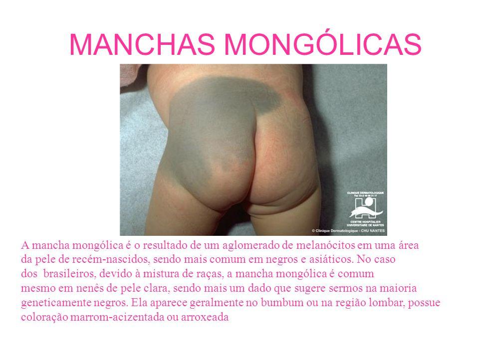 A mancha mongólica é o resultado de um aglomerado de melanócitos em uma área da pele de recém-nascidos, sendo mais comum em negros e asiáticos. No cas