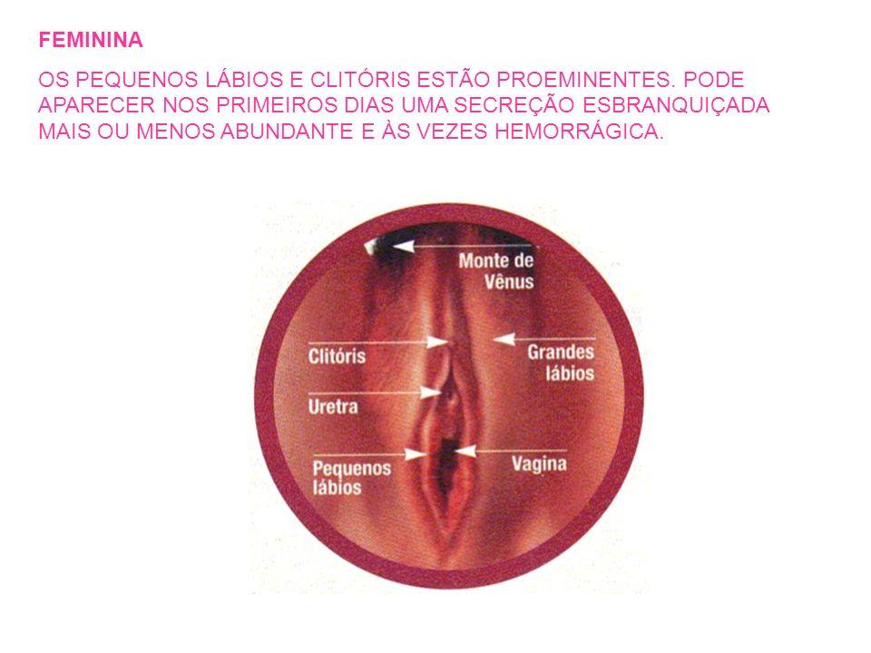 FEMININA OS PEQUENOS LÁBIOS E CLITÓRIS ESTÃO PROEMINENTES. PODE APARECER NOS PRIMEIROS DIAS UMA SECREÇÃO ESBRANQUIÇADA MAIS OU MENOS ABUNDANTE E ÀS VE