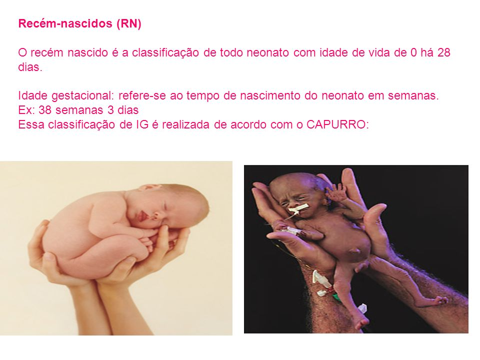 Recém-nascidos (RN) O recém nascido é a classificação de todo neonato com idade de vida de 0 há 28 dias. Idade gestacional: refere-se ao tempo de nasc