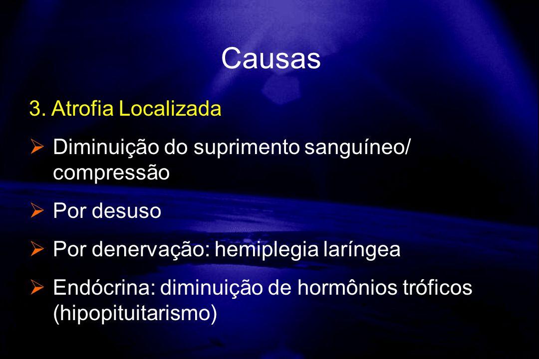 3. Atrofia Localizada Diminuição do suprimento sanguíneo/ compressão Por desuso Por denervação: hemiplegia laríngea Endócrina: diminuição de hormônios