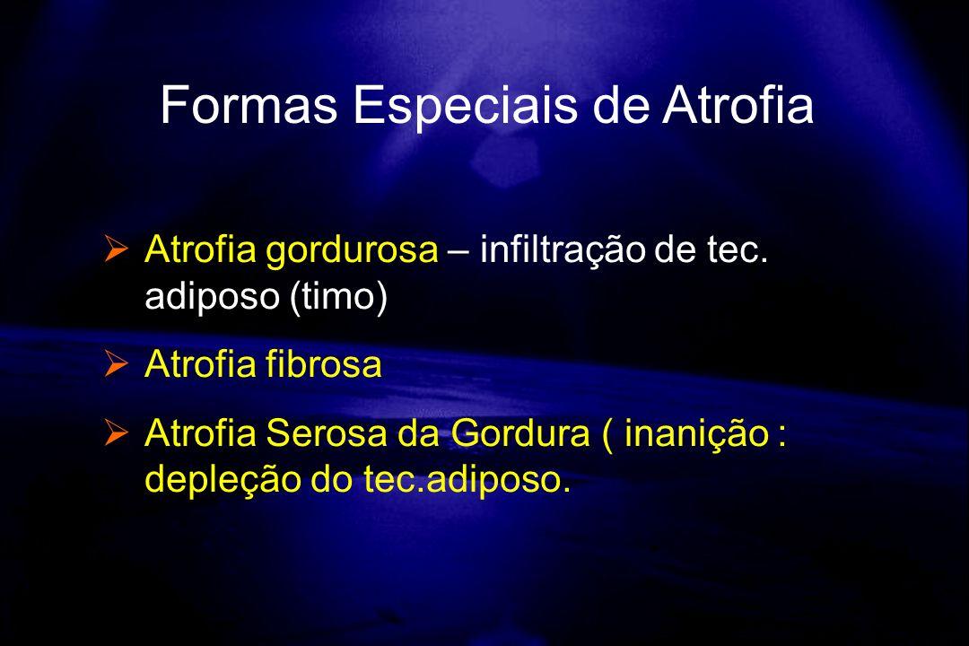 Atrofia gordurosa – infiltração de tec. adiposo (timo) Atrofia fibrosa Atrofia Serosa da Gordura ( inanição : depleção do tec.adiposo. Formas Especiai
