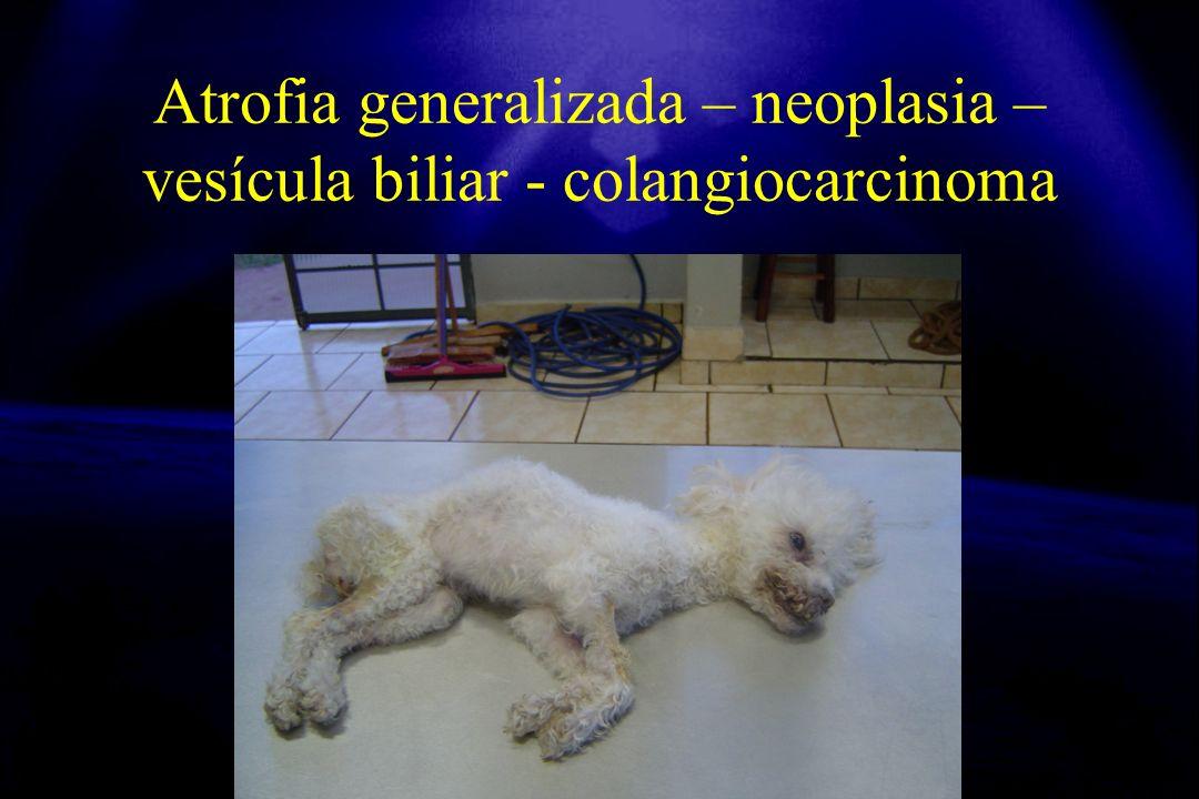 Atrofia generalizada – neoplasia – vesícula biliar - colangiocarcinoma