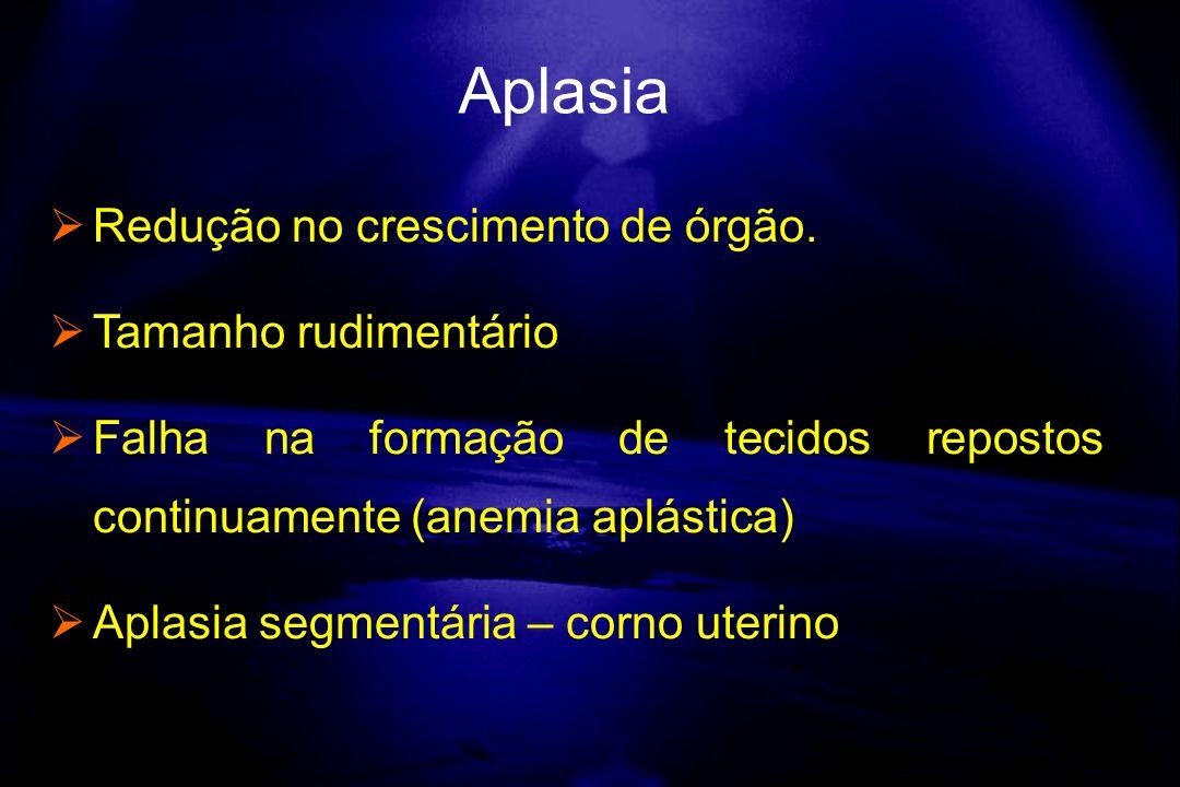 Redução no crescimento de órgão. Tamanho rudimentário Falha na formação de tecidos repostos continuamente (anemia aplástica) Aplasia segmentária – cor
