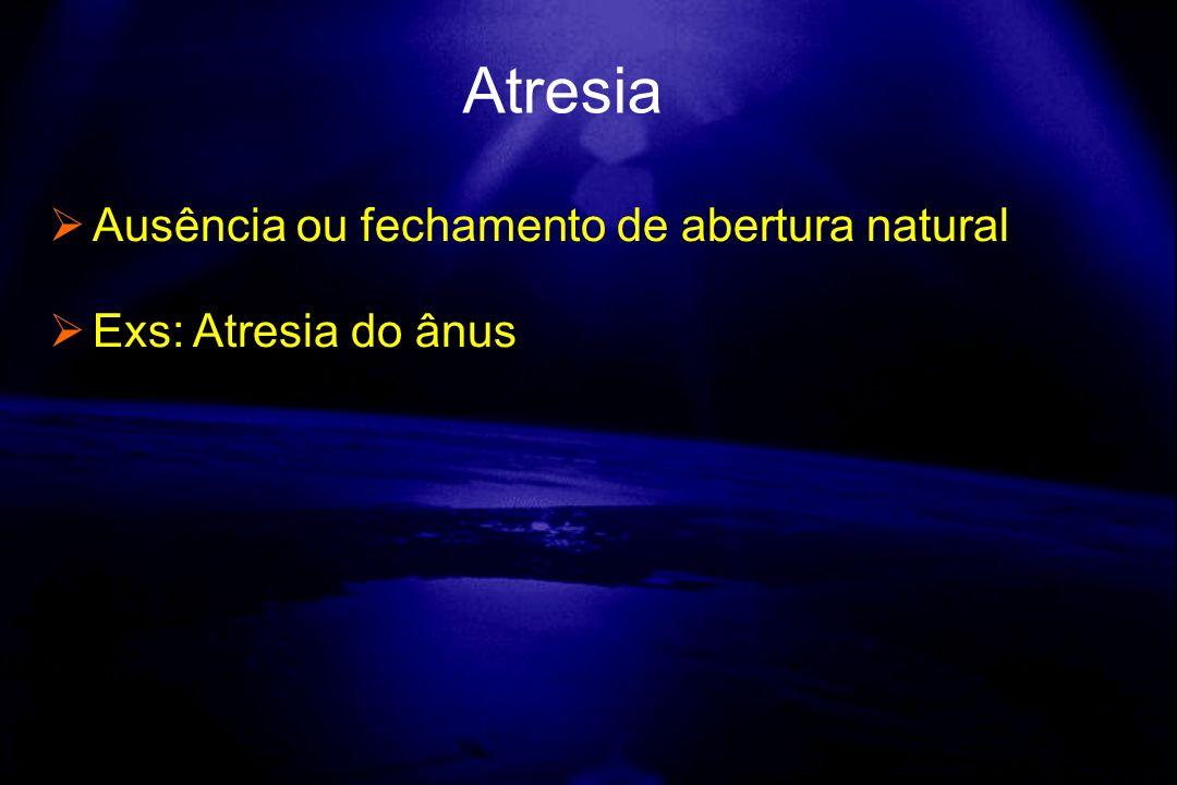 Ausência ou fechamento de abertura natural Exs: Atresia do ânus Atresia