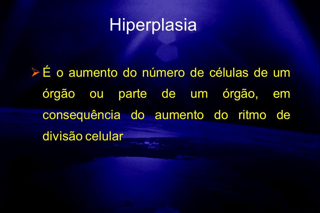 É o aumento do número de células de um órgão ou parte de um órgão, em consequência do aumento do ritmo de divisão celular Hiperplasia