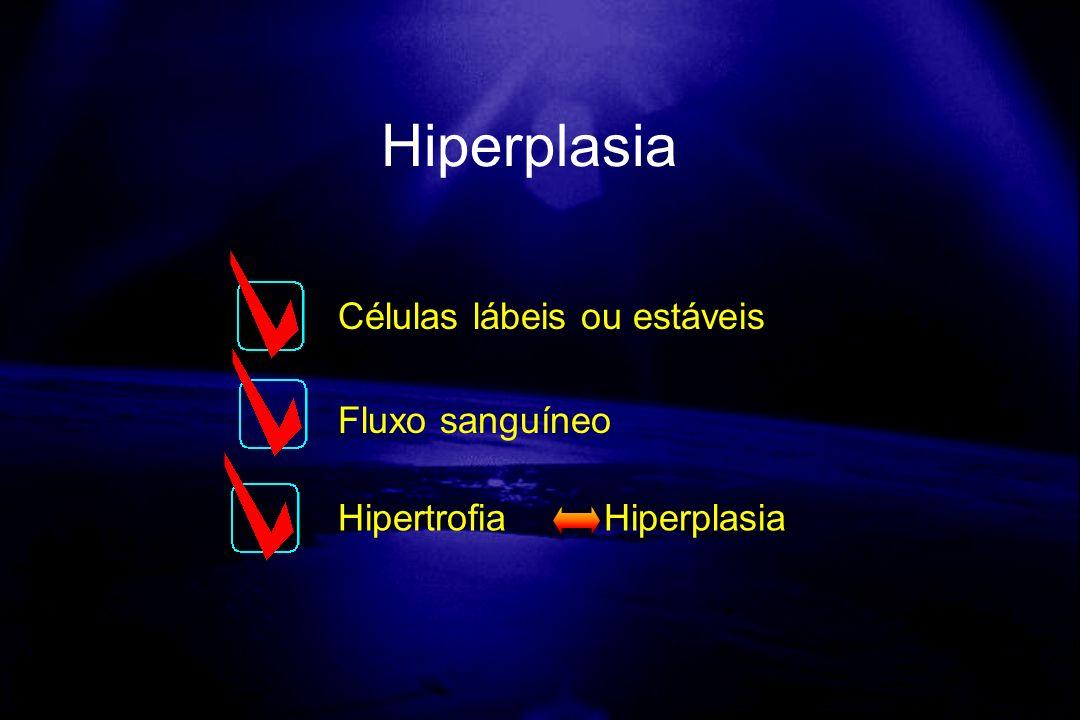 Células lábeis ou estáveis Fluxo sanguíneo Hipertrofia Hiperplasia Hiperplasia