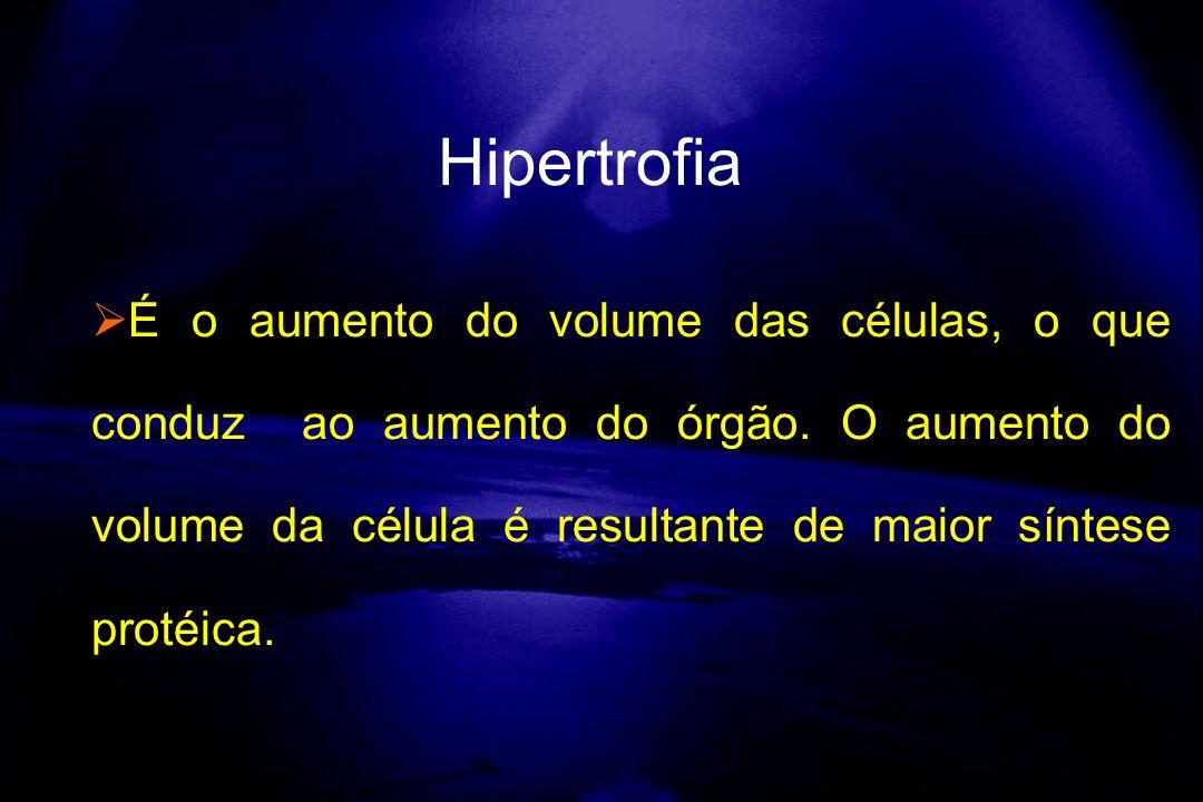 É o aumento do volume das células, o que conduz ao aumento do órgão. O aumento do volume da célula é resultante de maior síntese protéica. Hipertrofia
