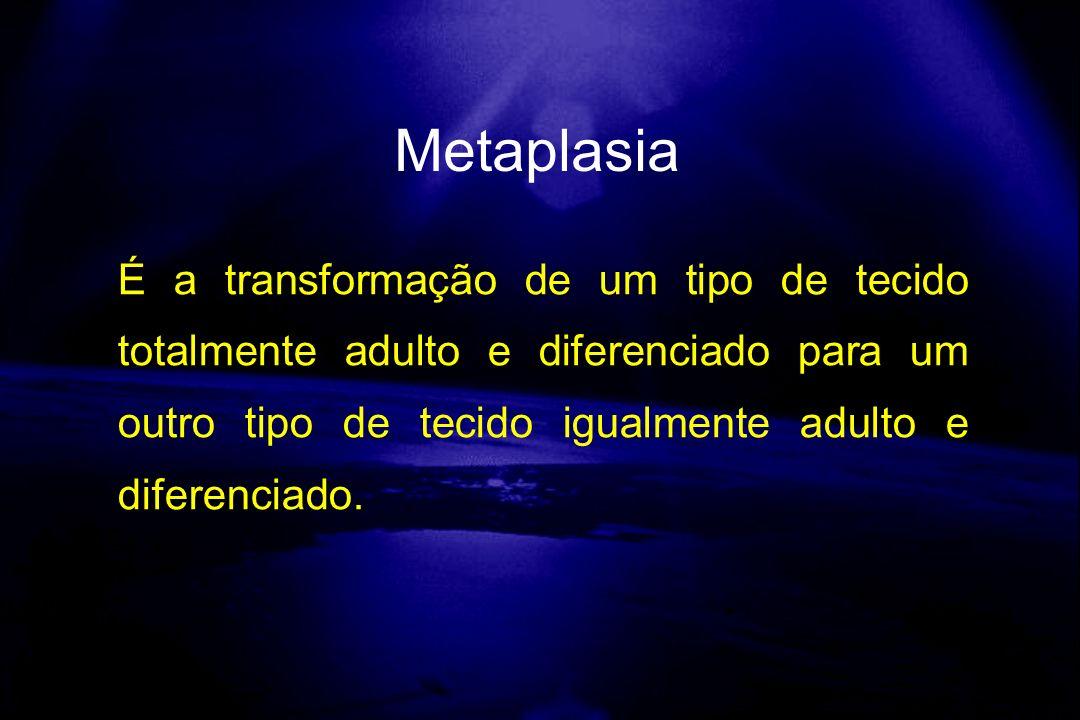 É a transformação de um tipo de tecido totalmente adulto e diferenciado para um outro tipo de tecido igualmente adulto e diferenciado. Metaplasia
