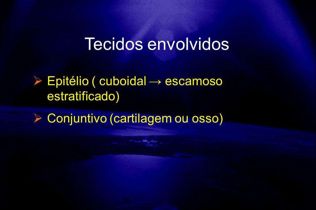 Tecidos envolvidos Epitélio ( cuboidal escamoso estratificado) Conjuntivo (cartilagem ou osso)