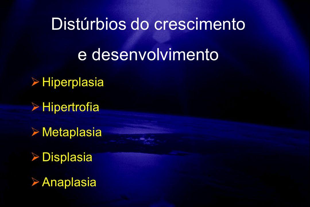 Hiperplasia Hipertrofia Metaplasia Displasia Anaplasia Distúrbios do crescimento e desenvolvimento