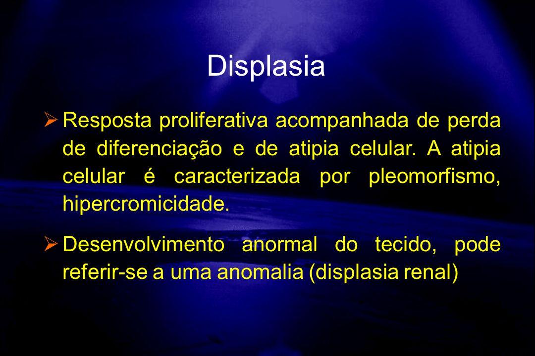 Resposta proliferativa acompanhada de perda de diferenciação e de atipia celular. A atipia celular é caracterizada por pleomorfismo, hipercromicidade.