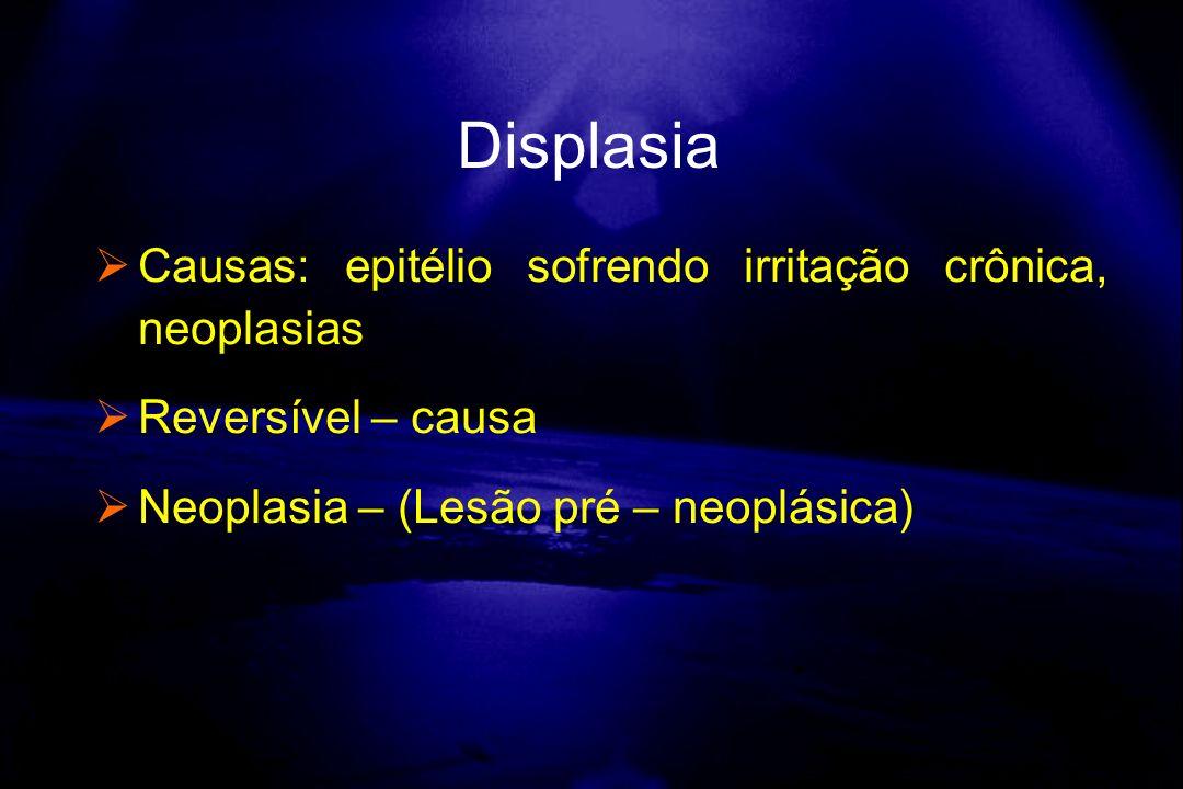Causas: epitélio sofrendo irritação crônica, neoplasias Reversível – causa Neoplasia – (Lesão pré – neoplásica) Displasia