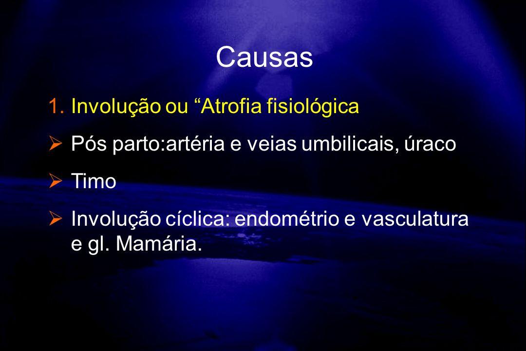 1.Involução ou Atrofia fisiológica Pós parto:artéria e veias umbilicais, úraco Timo Involução cíclica: endométrio e vasculatura e gl. Mamária. Causas