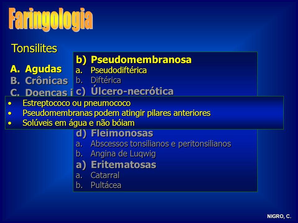 NIGRO, C. Tonsilites A.Agudas B.Crônicas C.Doenças infecciosas D.Tonsilite lingual E.Tonsilectomia b)Pseudomembranosa a.Pseudodiftérica b.Diftérica c)