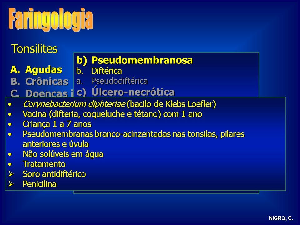 NIGRO, C. Tonsilites A.Agudas B.Crônicas C.Doenças infecciosas D.Tonsilite lingual E.Tonsilectomia b)Pseudomembranosa b.Diftérica a.Pseudodiftérica c)