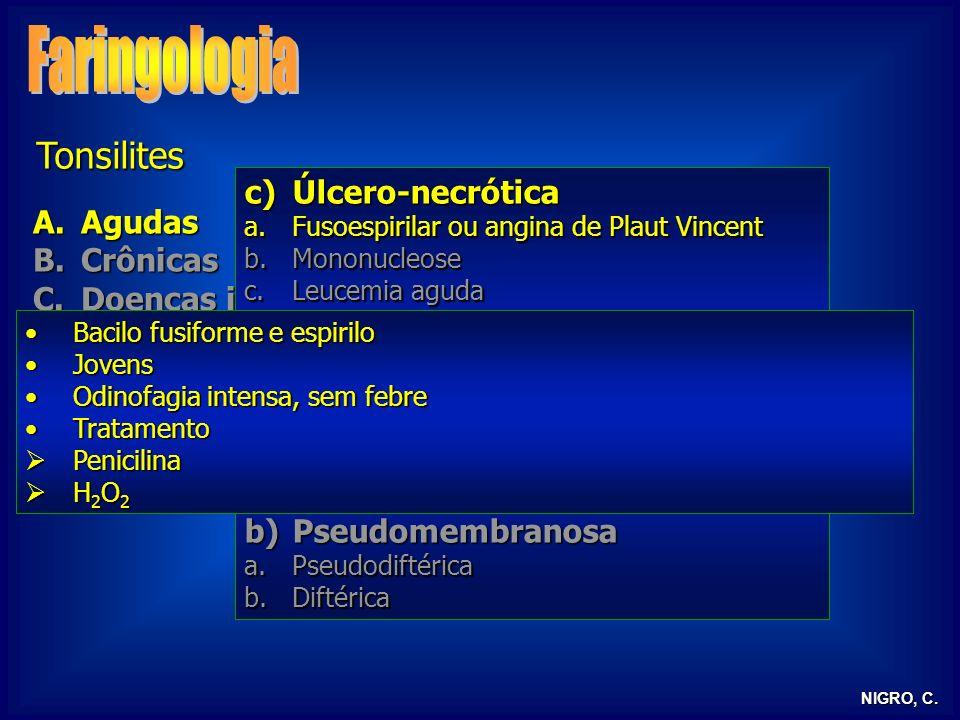NIGRO, C. Tonsilites A.Agudas B.Crônicas C.Doenças infecciosas D.Tonsilite lingual E.Tonsilectomia c)Úlcero-necrótica a.Fusoespirilar ou angina de Pla