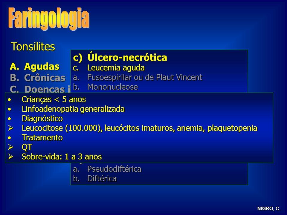 NIGRO, C. Tonsilites A.Agudas B.Crônicas C.Doenças infecciosas D.Tonsilite lingual E.Tonsilectomia c)Úlcero-necrótica c.Leucemia aguda a.Fusoespirilar