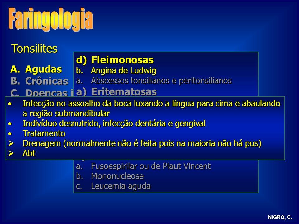 NIGRO, C. Tonsilites A.Agudas B.Crônicas C.Doenças infecciosas D.Tonsilite lingual E.Tonsilectomia d)Fleimonosas b.Angina de Ludwig a.Abscessos tonsil