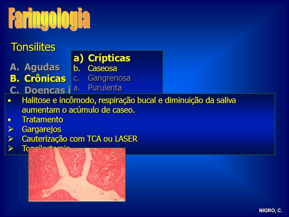 NIGRO, C. Tonsilites A.Agudas B.Crônicas C.Doenças infecciosas D.Tonsilite lingual E.Tonsilectomia a)Crípticas b.Caseosa c.Gangrenosa a.Purulenta b)Hi