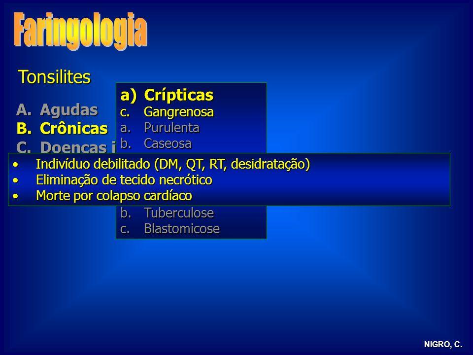NIGRO, C. Tonsilites A.Agudas B.Crônicas C.Doenças infecciosas D.Tonsilite lingual E.Tonsilectomia a)Crípticas c.Gangrenosa a.Purulenta b.Caseosa b)Hi