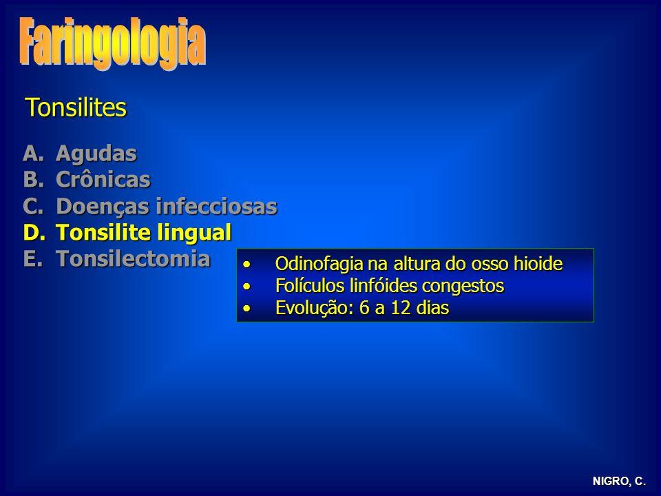 NIGRO, C. Tonsilites A.Agudas B.Crônicas C.Doenças infecciosas D.Tonsilite lingual E.Tonsilectomia Odinofagia na altura do osso hioideOdinofagia na al