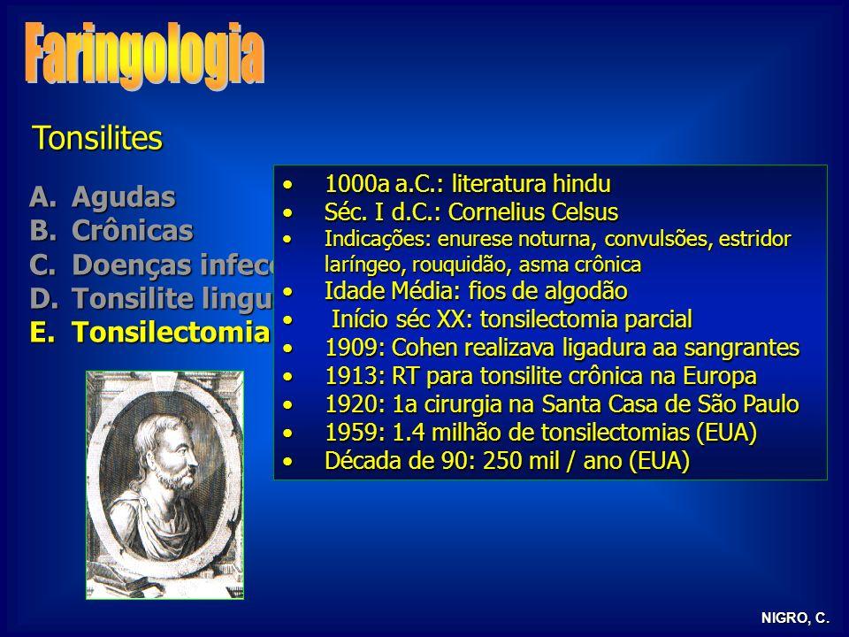 NIGRO, C. Tonsilites A.Agudas B.Crônicas C.Doenças infecciosas D.Tonsilite lingual E.Tonsilectomia 1000a a.C.: literatura hindu1000a a.C.: literatura
