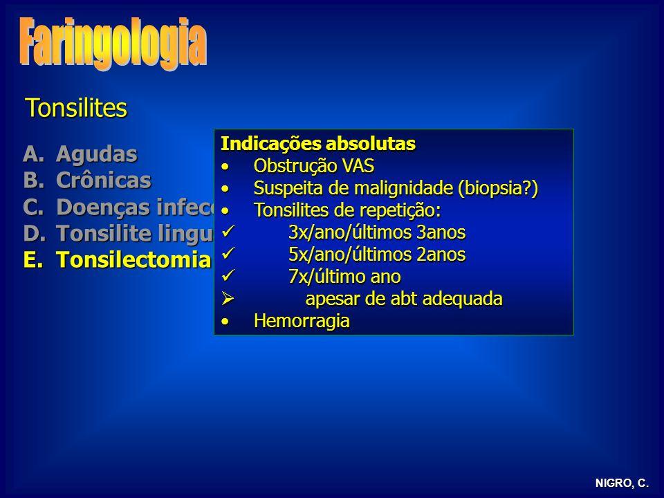 NIGRO, C. Tonsilites A.Agudas B.Crônicas C.Doenças infecciosas D.Tonsilite lingual E.Tonsilectomia Indicações absolutas Obstrução VASObstrução VAS Sus