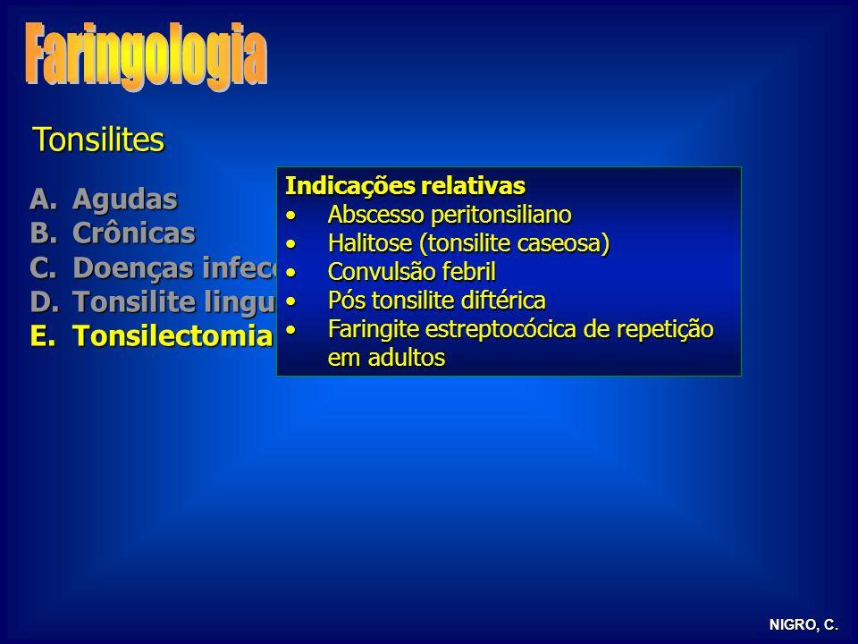 NIGRO, C. Tonsilites A.Agudas B.Crônicas C.Doenças infecciosas D.Tonsilite lingual E.Tonsilectomia Indicações relativas Abscesso peritonsilianoAbscess