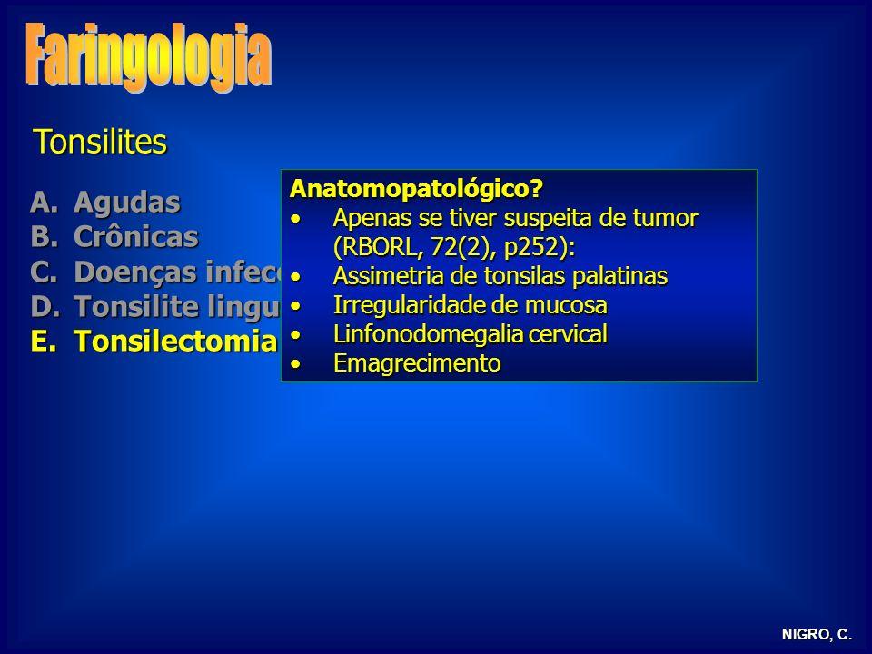 NIGRO, C. Tonsilites A.Agudas B.Crônicas C.Doenças infecciosas D.Tonsilite lingual E.Tonsilectomia Anatomopatológico? Apenas se tiver suspeita de tumo