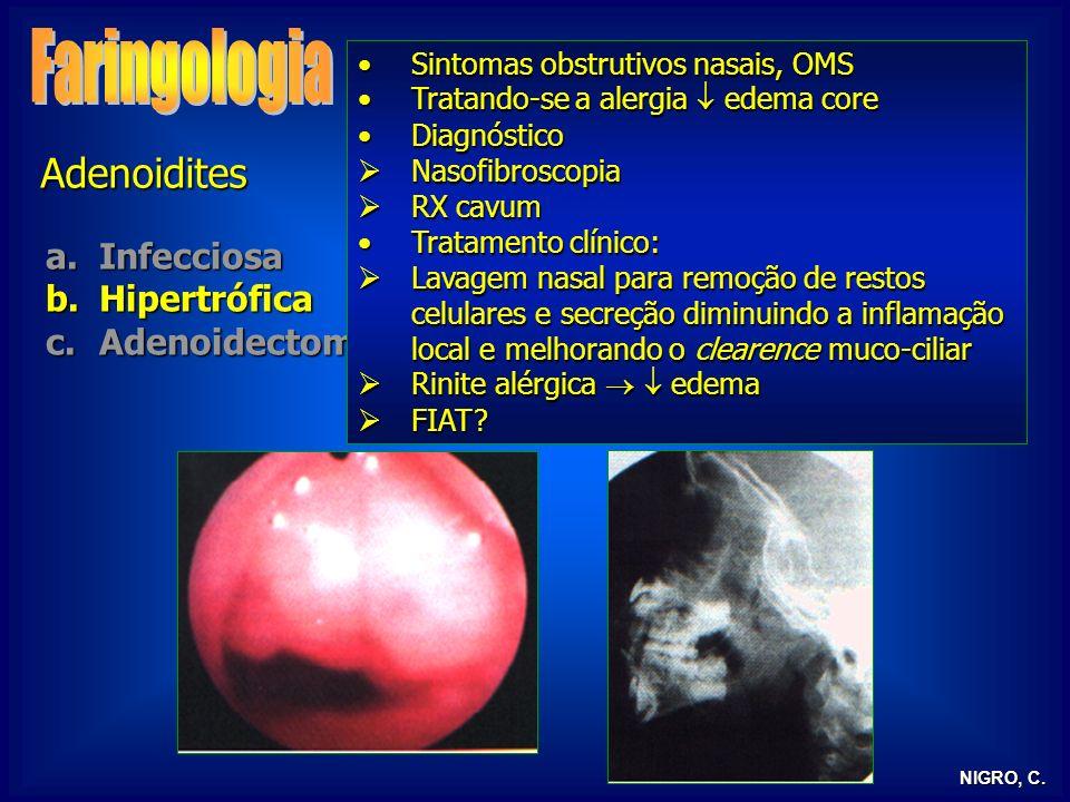 NIGRO, C. Adenoidites a.Infecciosa b.Hipertrófica c.Adenoidectomia Sintomas obstrutivos nasais, OMSSintomas obstrutivos nasais, OMS Tratando-se a aler