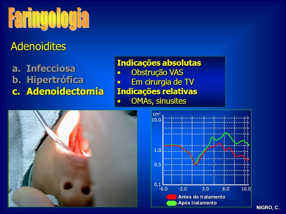 NIGRO, C. Adenoidites a.Infecciosa b.Hipertrófica c.Adenoidectomia Indicações absolutas Obstrução VASObstrução VAS Em cirurgia de TVEm cirurgia de TV