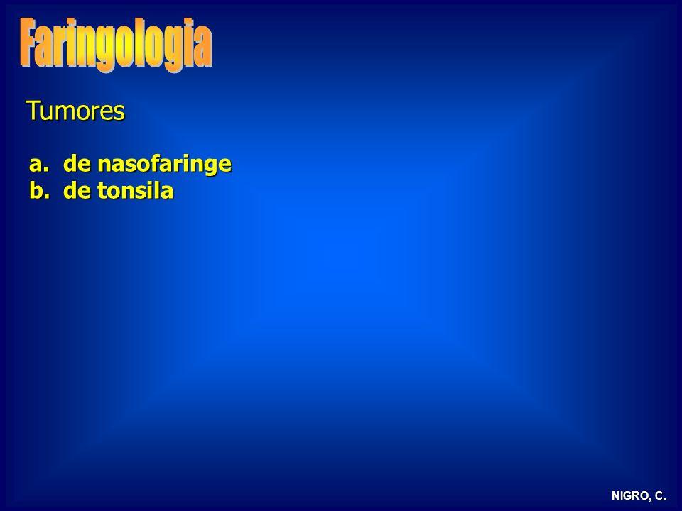 NIGRO, C. Tumores a.de nasofaringe b.de tonsila