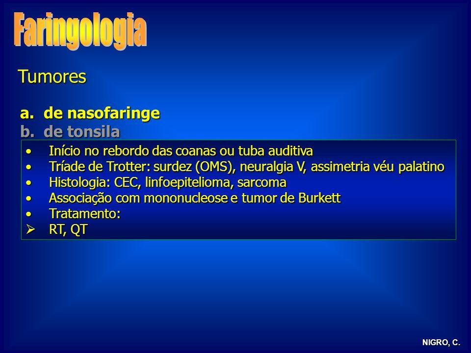 NIGRO, C. Tumores a.de nasofaringe b.de tonsila Início no rebordo das coanas ou tuba auditivaInício no rebordo das coanas ou tuba auditiva Tríade de T