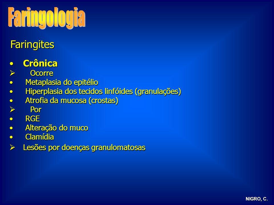 NIGRO, C. Faringites CrônicaCrônica Ocorre Ocorre Metaplasia do epitélio Metaplasia do epitélio Hiperplasia dos tecidos linfóides (granulações) Hiperp