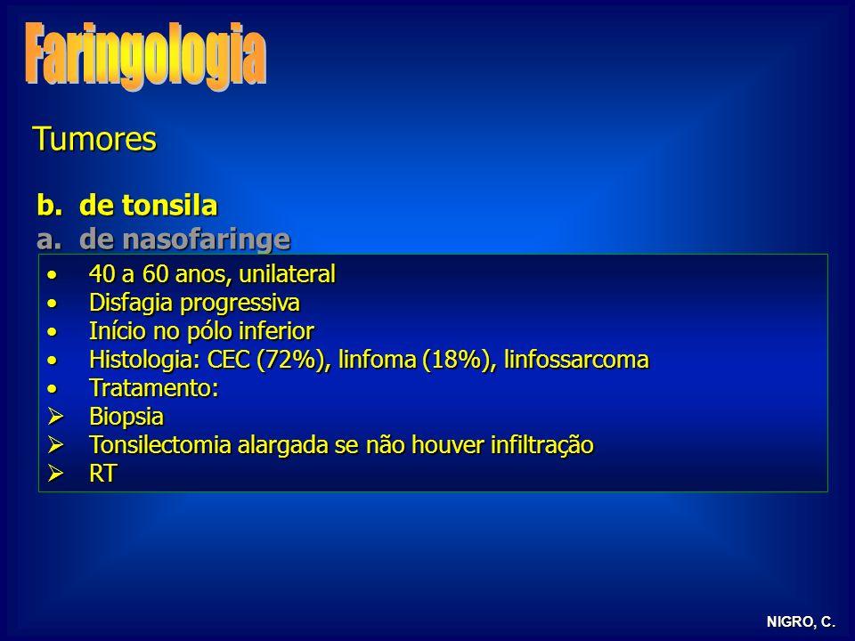 NIGRO, C. Tumores b.de tonsila a.de nasofaringe 40 a 60 anos, unilateral40 a 60 anos, unilateral Disfagia progressivaDisfagia progressiva Início no pó