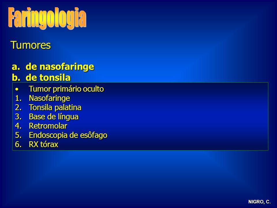NIGRO, C. Tumores a.de nasofaringe b.de tonsila Tumor primário ocultoTumor primário oculto 1.Nasofaringe 2.Tonsila palatina 3.Base de língua 4.Retromo