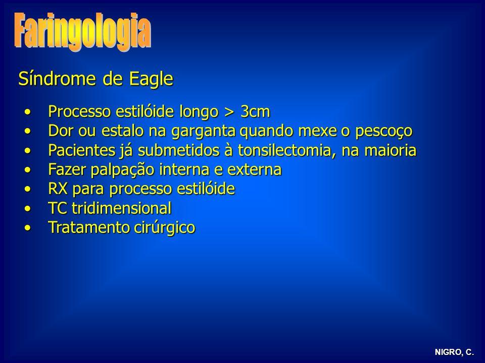 NIGRO, C. Síndrome de Eagle Processo estilóide longo > 3cmProcesso estilóide longo > 3cm Dor ou estalo na garganta quando mexe o pescoçoDor ou estalo