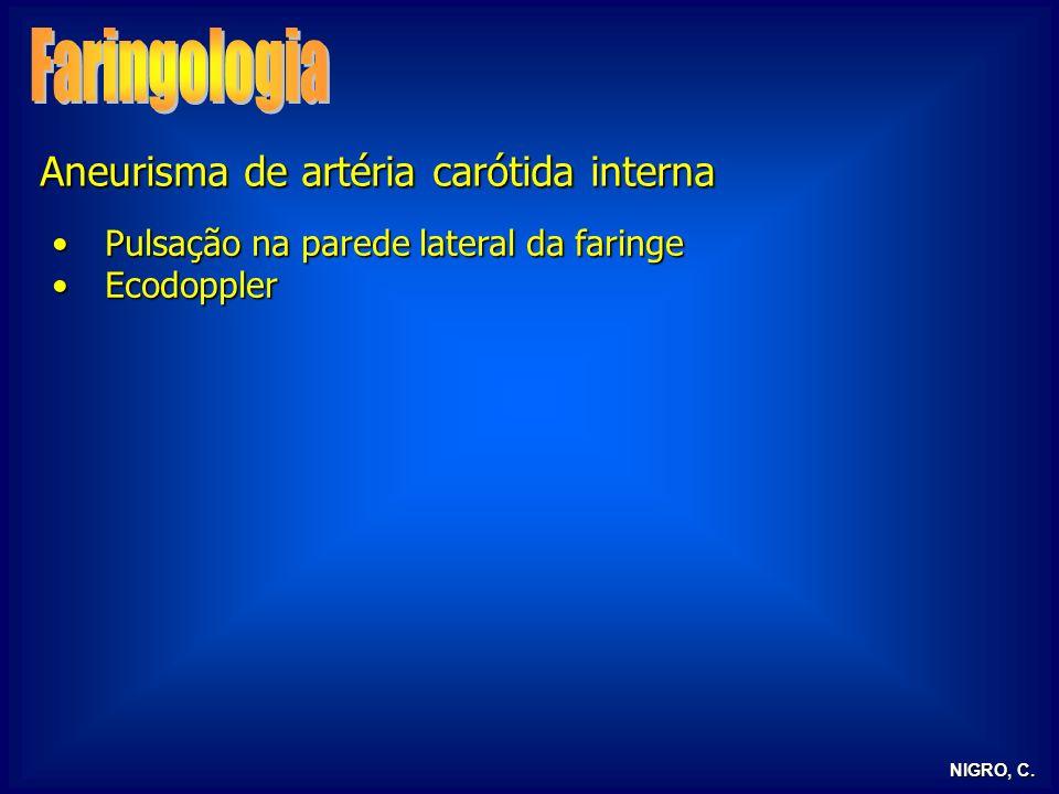 NIGRO, C. Aneurisma de artéria carótida interna Pulsação na parede lateral da faringePulsação na parede lateral da faringe EcodopplerEcodoppler