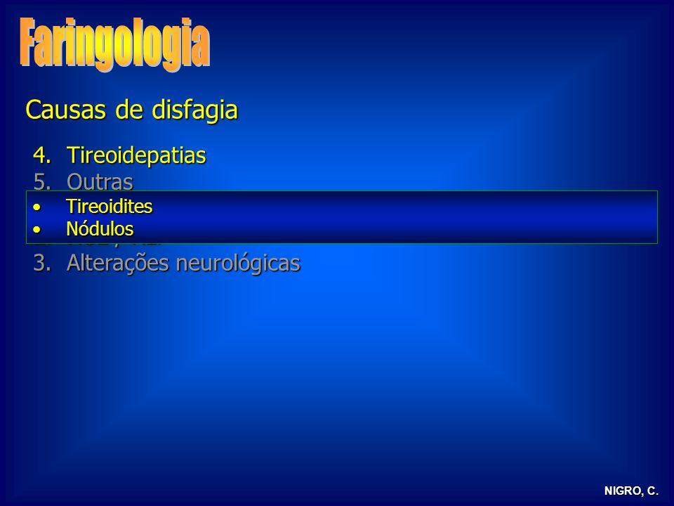 NIGRO, C. 4.Tireoidepatias 5.Outras 1.Globus histericus 2.RGE / RLF 3.Alterações neurológicas TireoiditesTireoidites NódulosNódulos Causas de disfagia