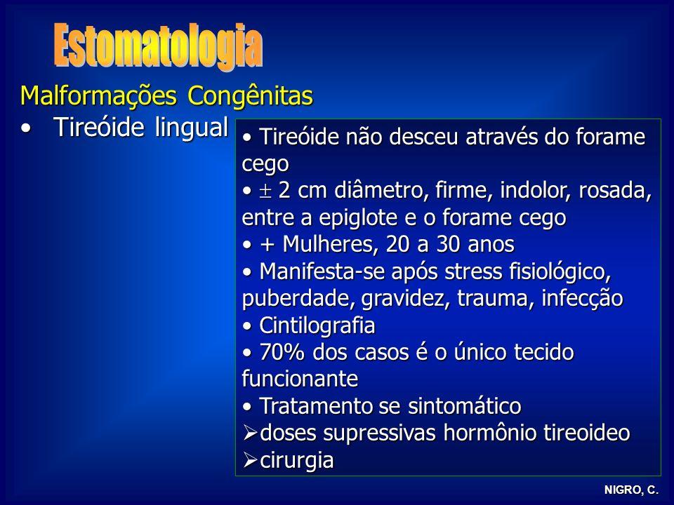 NIGRO, C. Malformações Congênitas Tireóide lingualTireóide lingual Tireóide não desceu através do forame cego Tireóide não desceu através do forame ce