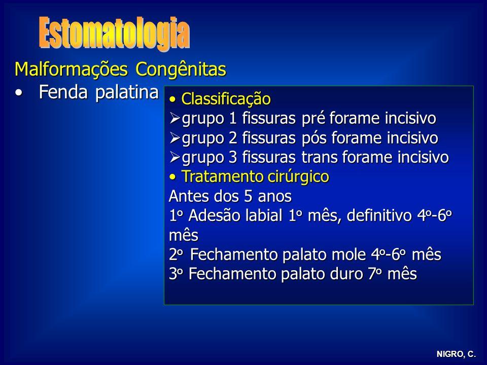 NIGRO, C. Malformações Congênitas Fenda palatinaFenda palatina Classificação Classificação grupo 1 fissuras pré forame incisivo grupo 1 fissuras pré f