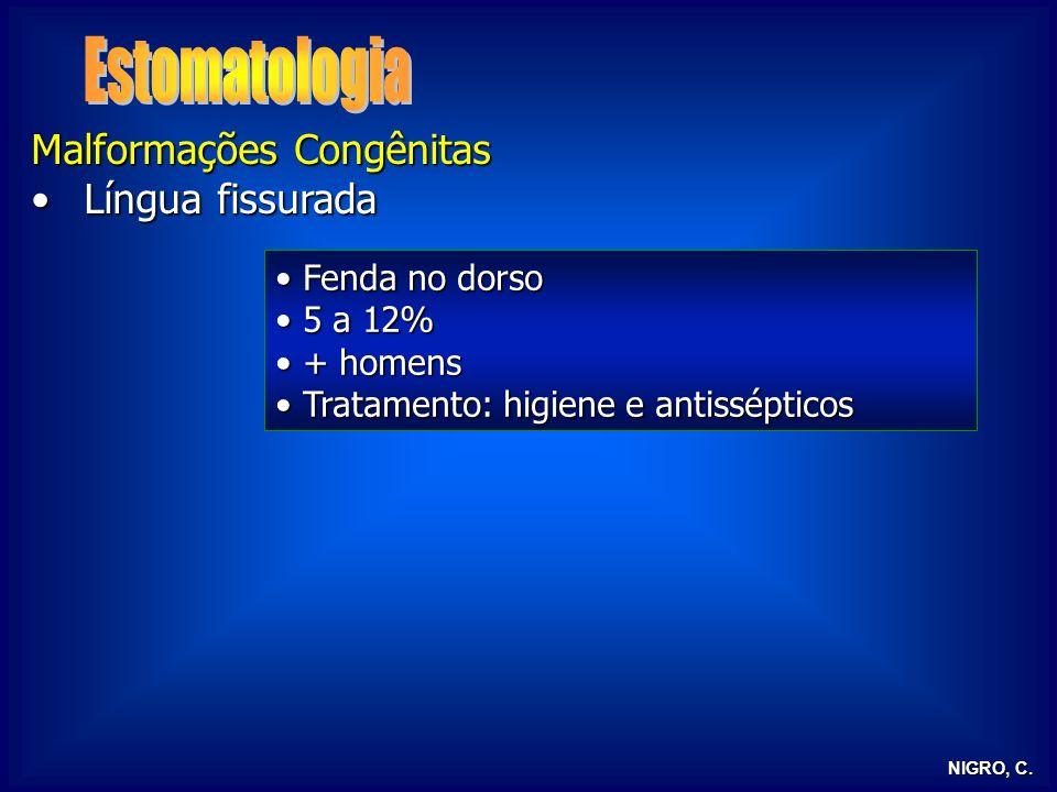 NIGRO, C. Malformações Congênitas Língua fissuradaLíngua fissurada Fenda no dorso Fenda no dorso 5 a 12% 5 a 12% + homens + homens Tratamento: higiene