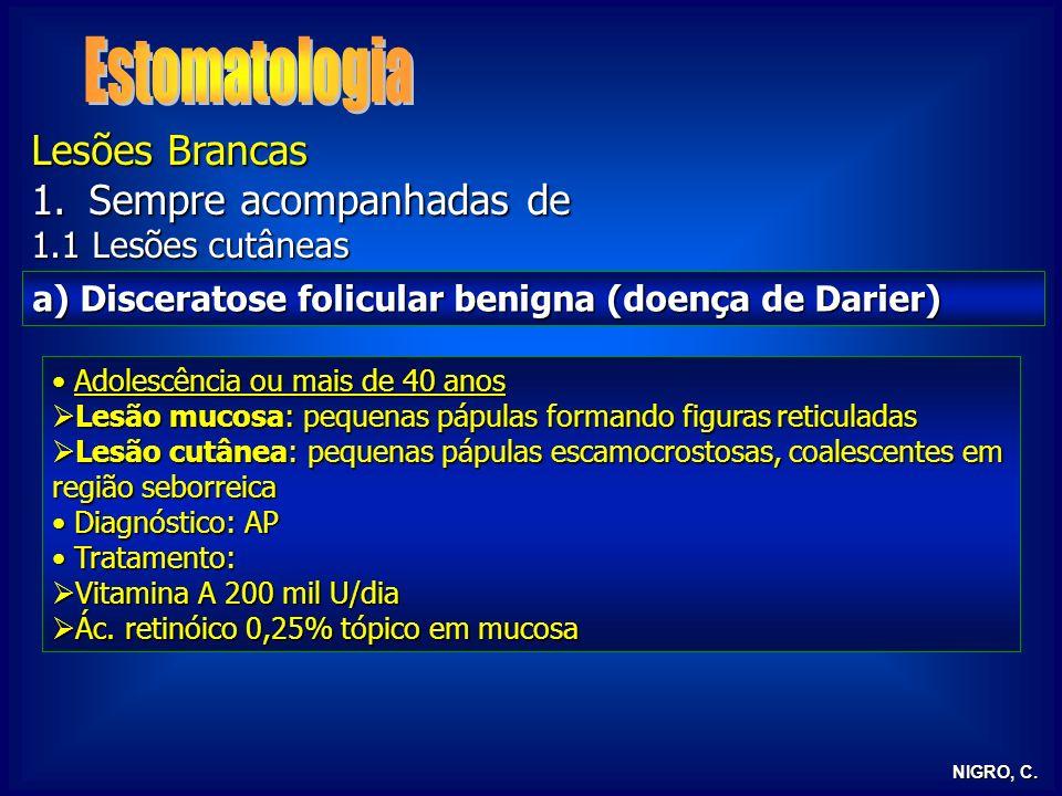 NIGRO, C. Lesões Brancas 1.Sempre acompanhadas de 1.1 Lesões cutâneas a) Disceratose folicular benigna (doença de Darier) Adolescência ou mais de 40 a