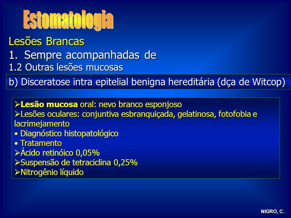 NIGRO, C. Lesões Brancas 1.Sempre acompanhadas de 1.2 Outras lesões mucosas b) Disceratose intra epitelial benigna hereditária (dça de Witcop) Lesão m