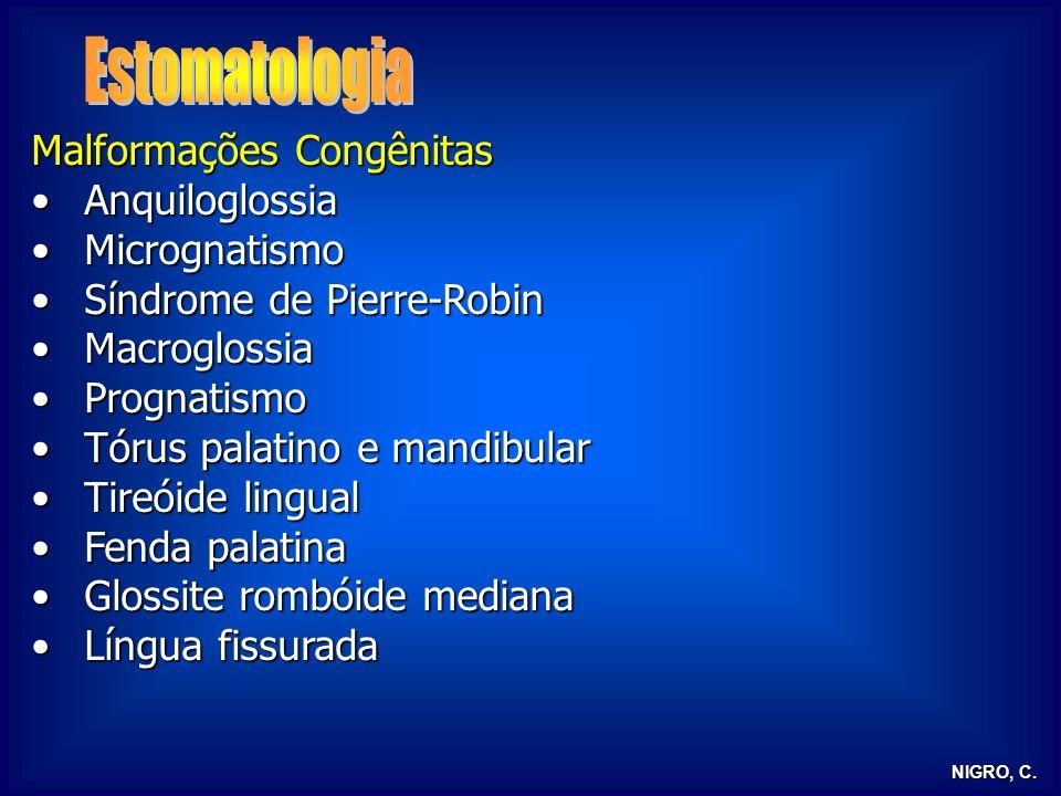 NIGRO, C. Malformações Congênitas AnquiloglossiaAnquiloglossia MicrognatismoMicrognatismo Síndrome de Pierre-RobinSíndrome de Pierre-Robin Macroglossi