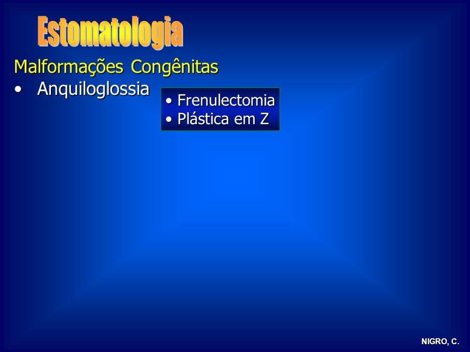NIGRO, C. Malformações Congênitas AnquiloglossiaAnquiloglossia Frenulectomia Frenulectomia Plástica em Z Plástica em Z