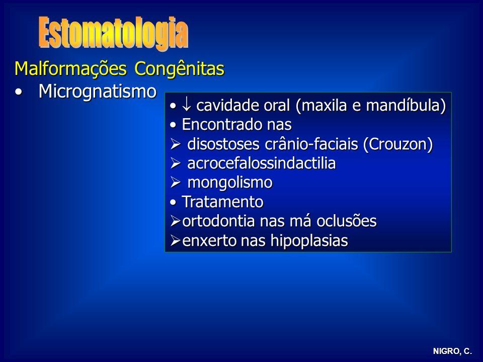 NIGRO, C. Malformações Congênitas MicrognatismoMicrognatismo cavidade oral (maxila e mandíbula) cavidade oral (maxila e mandíbula) Encontrado nas Enco