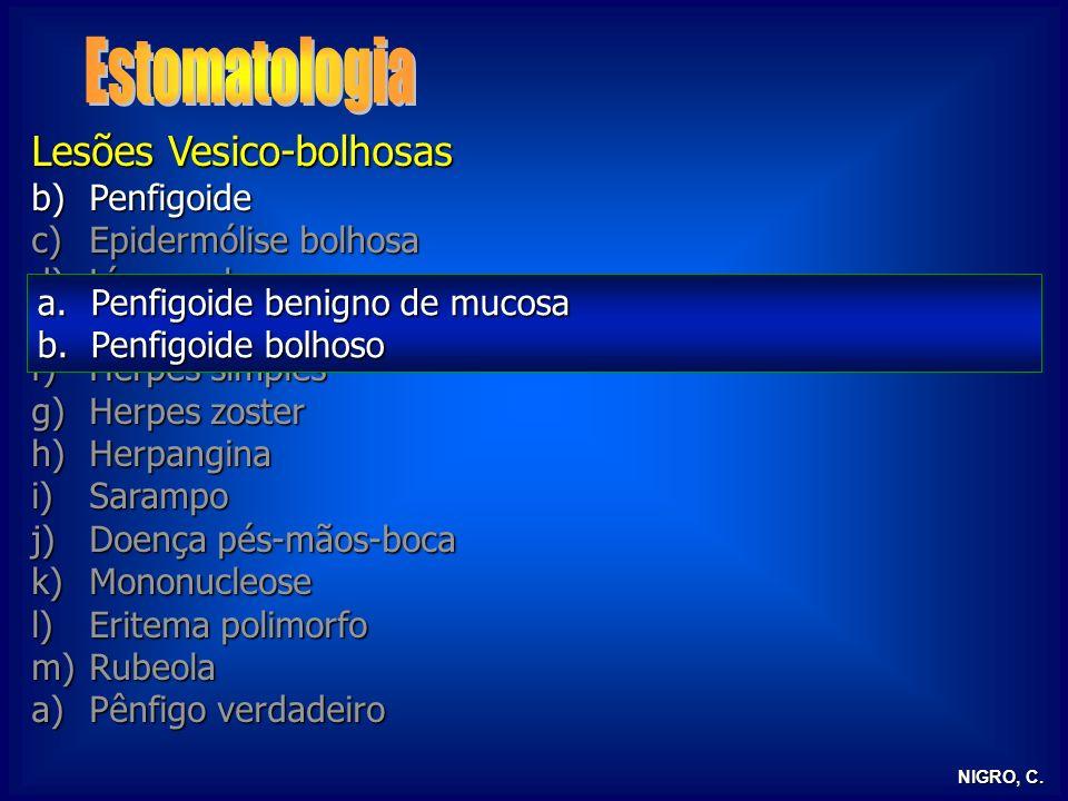 NIGRO, C. Lesões Vesico-bolhosas b)Penfigoide c)Epidermólise bolhosa d)Líquen plano e)Dermatite herpetiforme f)Herpes simples g)Herpes zoster h)Herpan