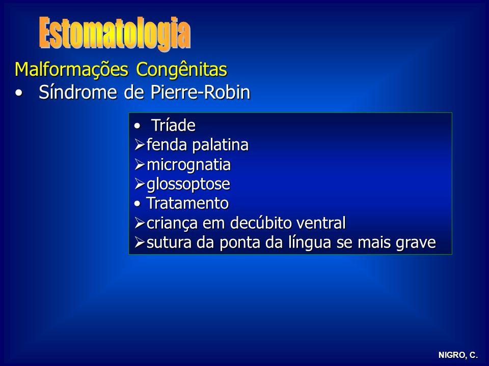 NIGRO, C. Malformações Congênitas Síndrome de Pierre-RobinSíndrome de Pierre-Robin Tríade Tríade fenda palatina fenda palatina micrognatia micrognatia