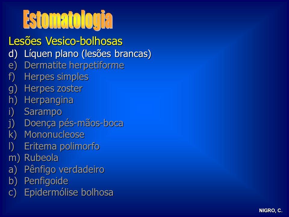 NIGRO, C. Lesões Vesico-bolhosas d)Líquen plano (lesões brancas) e)Dermatite herpetiforme f)Herpes simples g)Herpes zoster h)Herpangina i)Sarampo j)Do